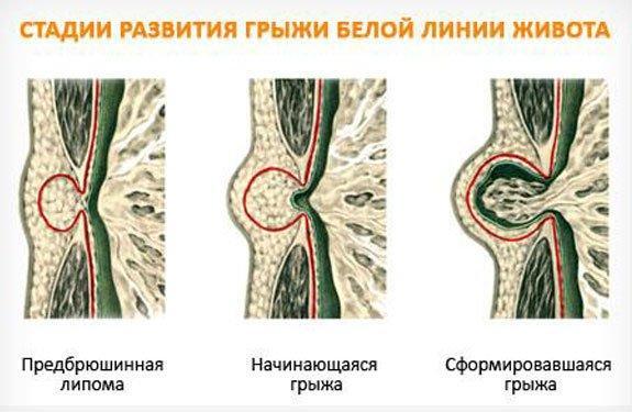 Степени развития грыжи белой линии живота