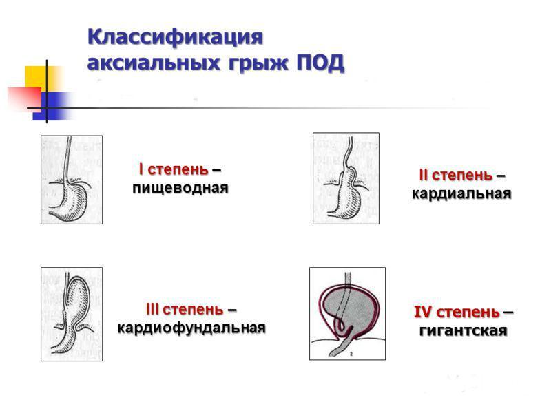 Степени грыжи пищевого отверстия диафрагмы