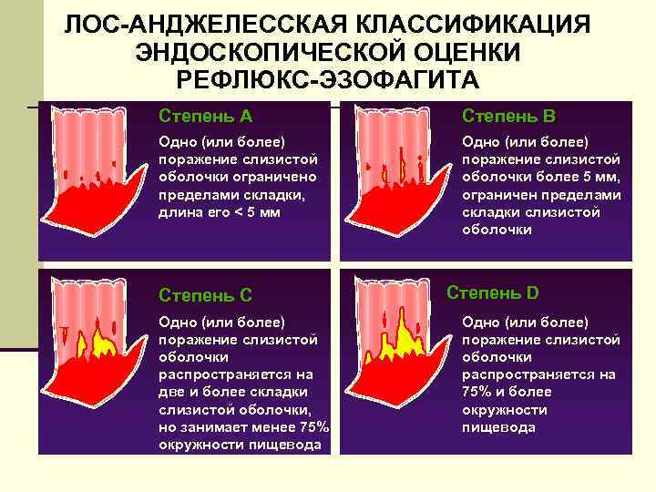Классификации рефлюкс эзофагита