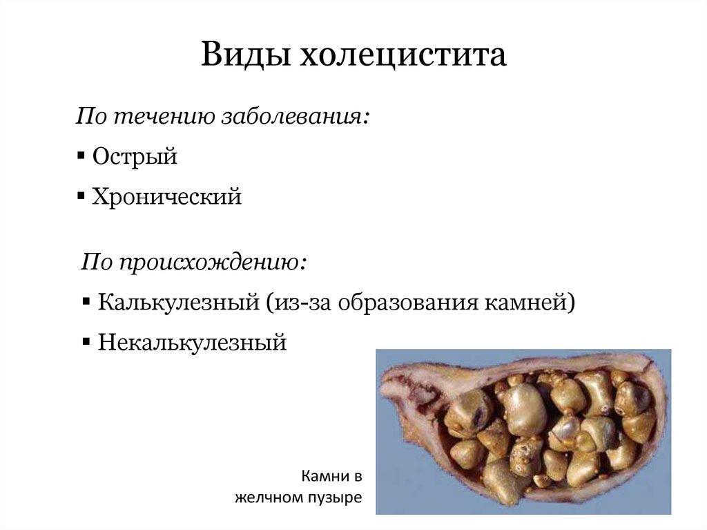 Формы холецистита
