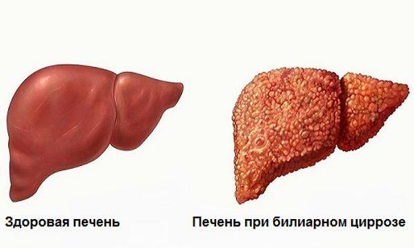 Печень при билиарном церрозе