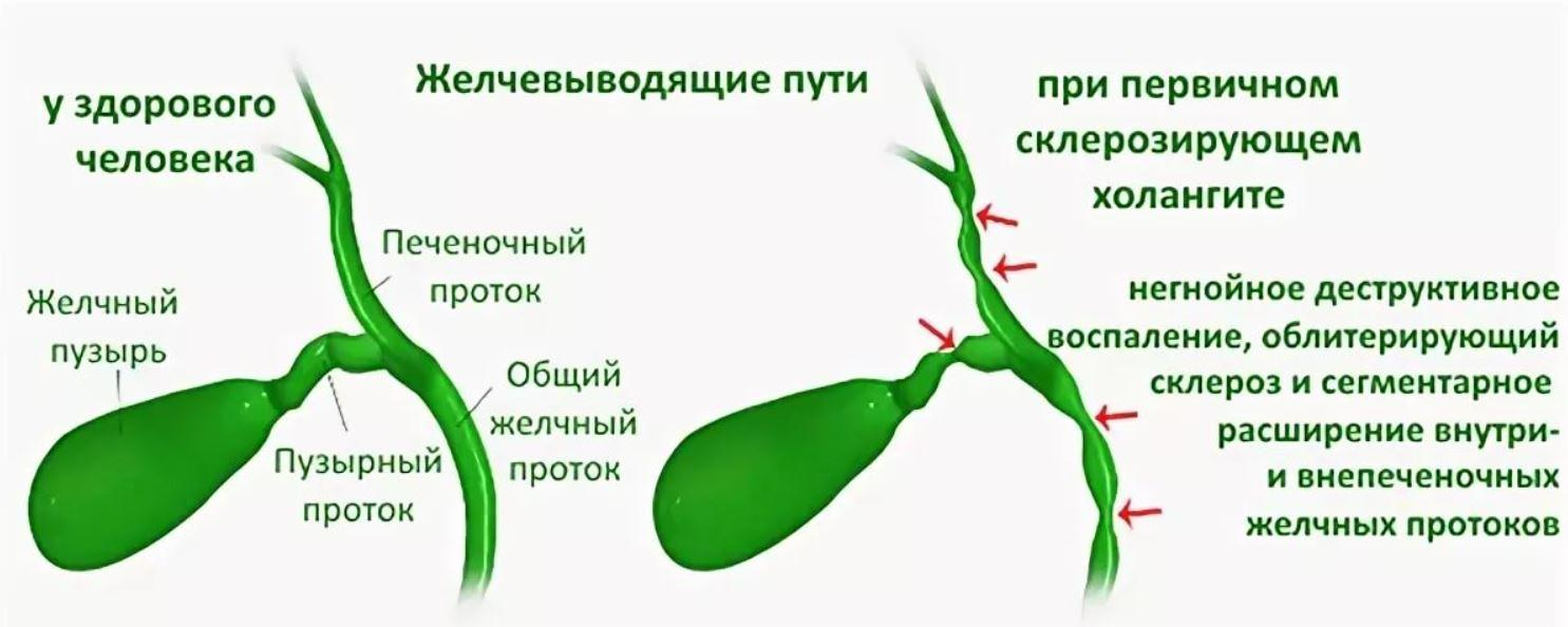 Воспаление желчных протоков