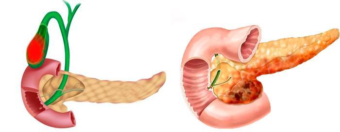 Воспаление поджелудочной железы и ЖП
