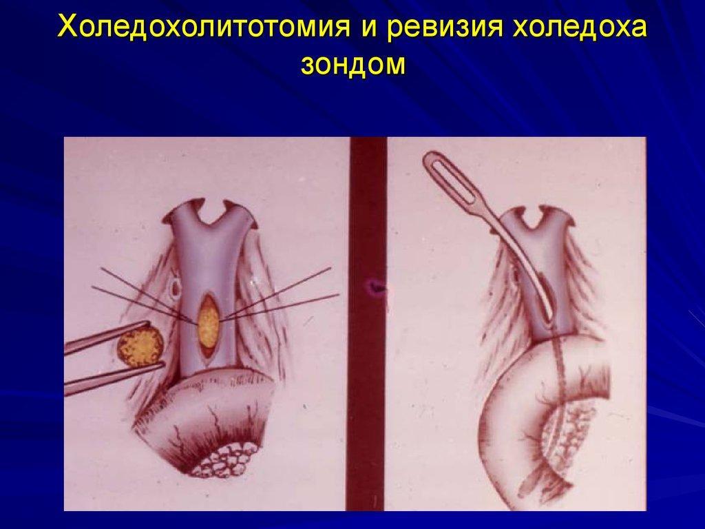 оледохолитотомия и ревизия холедоха зондом
