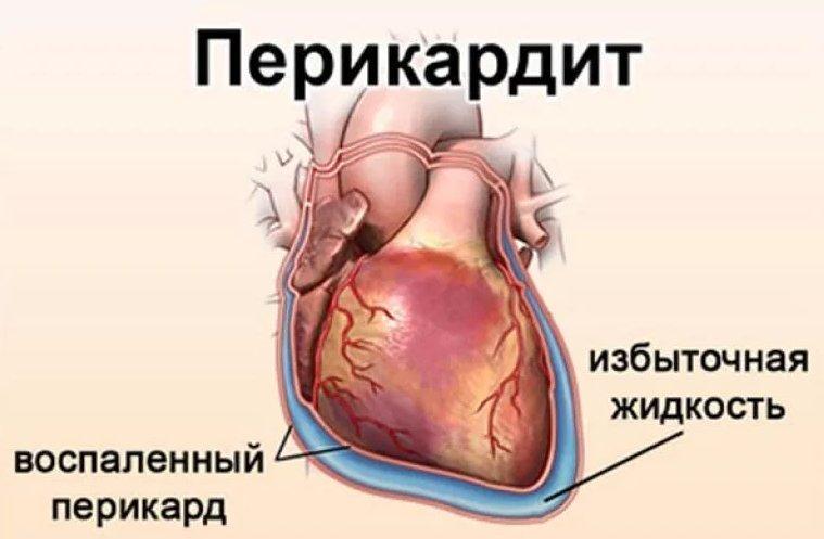 Воспалительное поражение серозной оболочки сердца