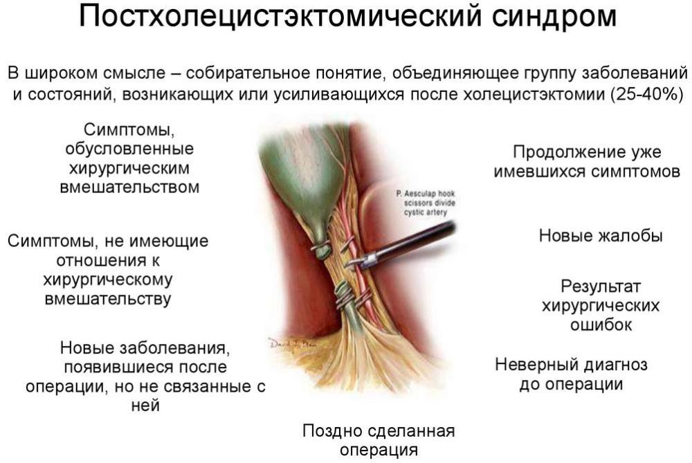 Постхолецистэктомический синдром