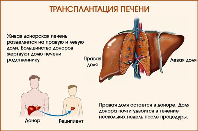 Пересадка печени