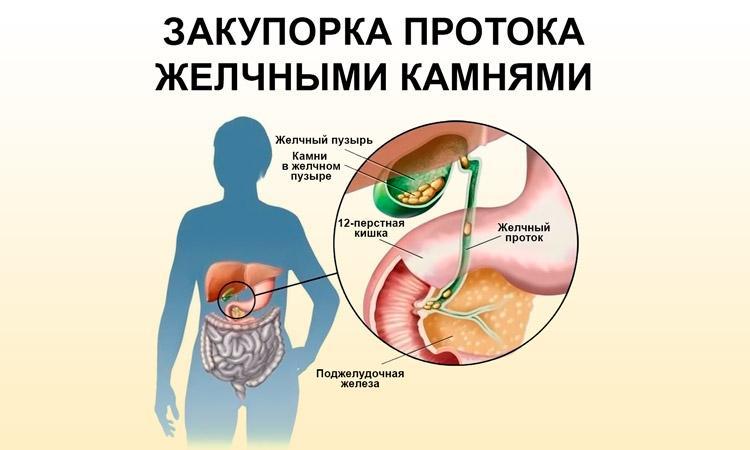 Закупорка желчных протоков конкрементами