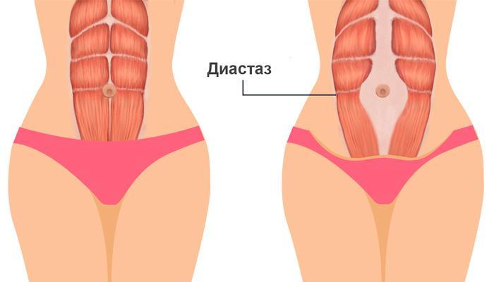 Разделение прямых мышц живота
