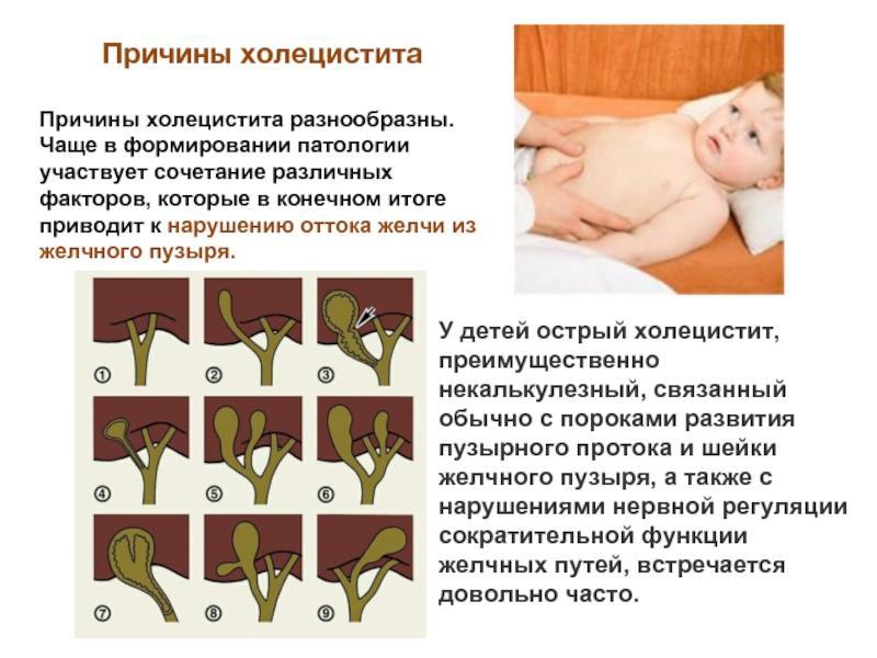 Причины воспаления ЖП у детей
