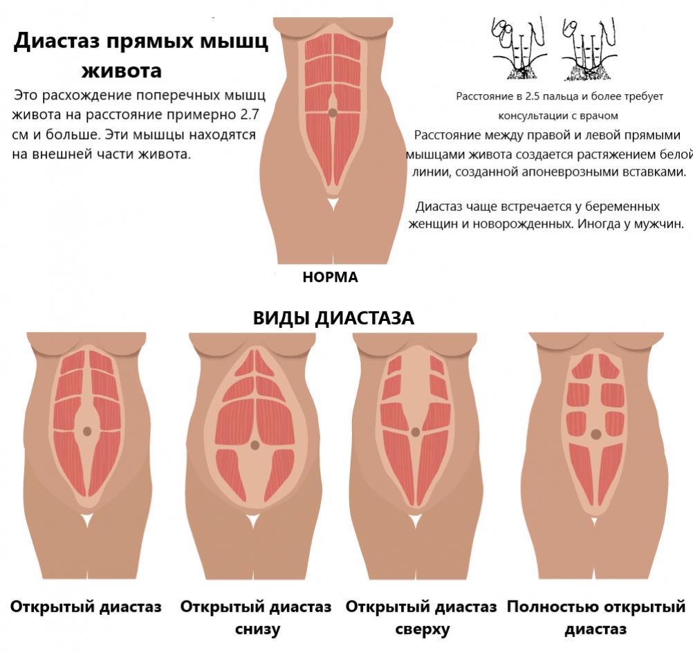 Виды разделения брюшных мышц